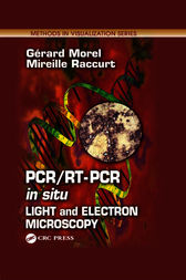PCR/RT- PCR in situ by Gerard Morel