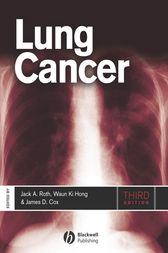Lung Cancer by Jack A. Roth