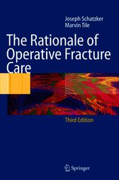 The Rationale of Operative Fracture Care by Joseph Schatzker