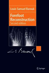 Forefoot Reconstruction by Louis-Samuel Barouk