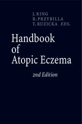 Handbook of Atopic Eczema by Johannes Ring