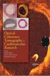 Optical Coherence Tomography in Cardiovascular Research by Regar Evelyn