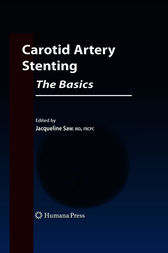 Carotid Artery Stenting: The Basics by Jacqueline Saw