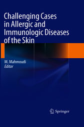 Challenging Cases in Allergic and Immunologic Diseases of the Skin by Massoud Mahmoudi