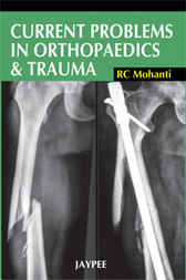 Current Problems in Orthopaedics and Trauma by R.C. Mohanti