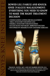 Bowed Leg (Varus) and Knock-Knee (Valgus) Malalignment: Everything You Need to Know to Make the Right Treatment Decision