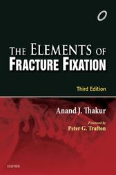 Elements of Fracture Fixation - E-book by Anand J. Thakur
