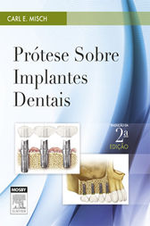 Prótese sobre Implantes Dentais by Carl E. Misch