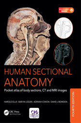 Human Sectional Anatomy by Adrian Kendal Dixon