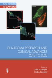 Glaucoma Research and Clinical Advances